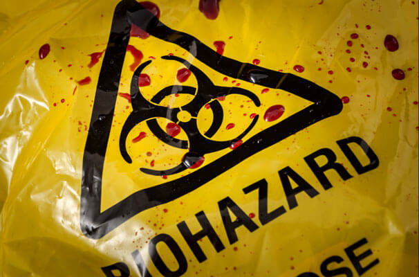 biohazard material cleanup in Green, CA